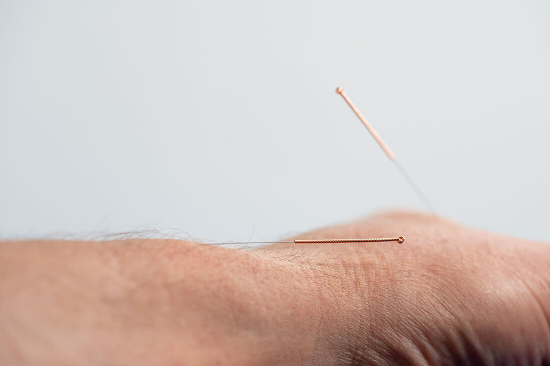 Unfallchirurg-Orthopaede-Hechingen-Gfroerer-Akupunktur-SA900759
